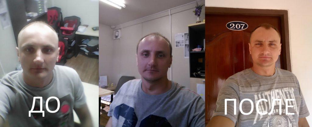 Миноксидил - До и После
