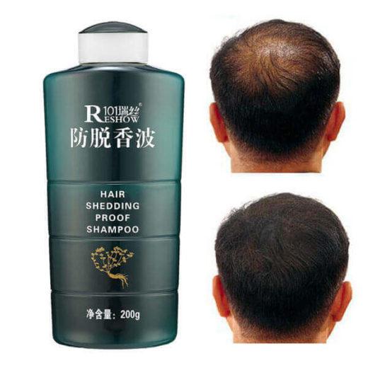 Шампунь для роста волос на травах, против облысения, от выпадения волос
