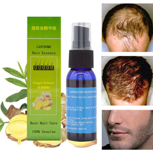 Спрей для уменьшения выпадения волос с китайскими травами.